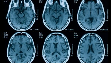Brain MRI and EEG evidence of COVID-19-related encephalopathy