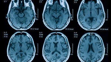 Brain MRI and EEG evidence of COVID-19-related encephalopathy