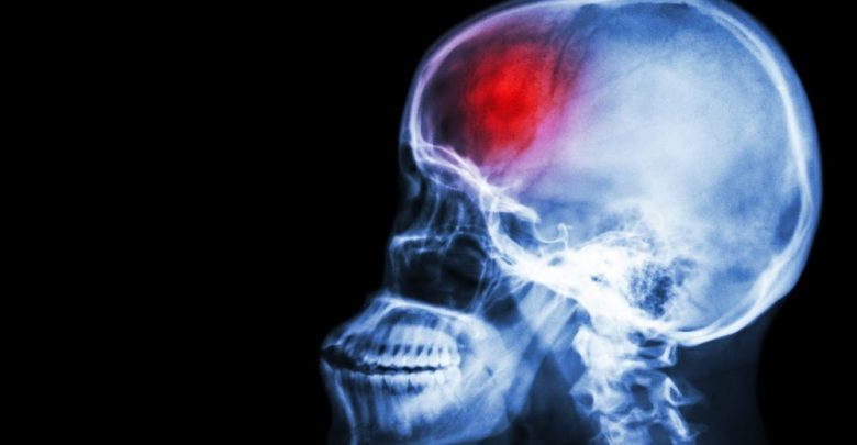Mesenchymal stem cell therapy has modest benefits for chronic severe stroke