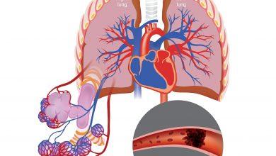 Sotatercept reduces pulmonary vascular resistance in PAH