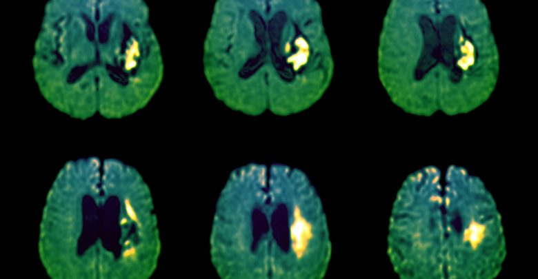 Increased SBP prior to onset of OAC related to the risk of hemorrhagic stroke in AF