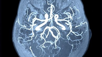 Traumatic brain injury increases the risk of future strokes