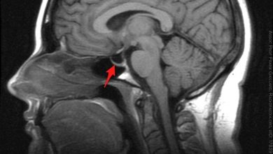 An MRI image of idiopathic intracranial hypertension