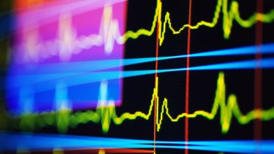 Risk of Sudden Unexpected Death in Patients with Epilepsy and Cardiac Autonomic Dysfunction
