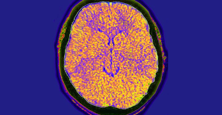 New case definition proposed for acute fulminant cerebral edema in children