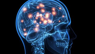 Lamotrigine is the best option for patients with newly diagnosed focal epilepsy