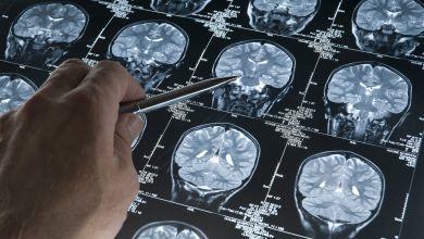 MRI-based subtypes of MS in the brain predict disability progression and response to treatment