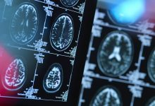 Novel outpatient and cognitive biomarkers for relapsing-remitting MS