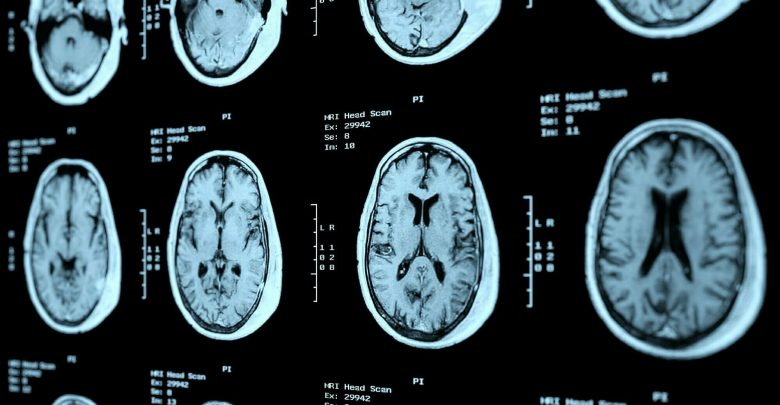 Combined immunotherapy effective in patients with melanoma and asymptomatic brain metastases