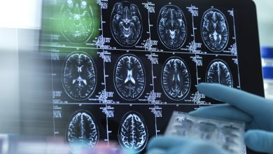 Early coagulopathy increases the risk of mortality in children with TBI