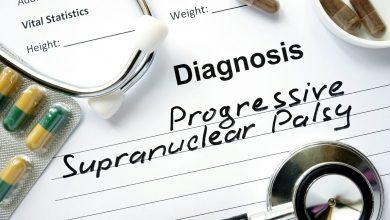 Tilavonemab not effective in progressive supranuclear palsy