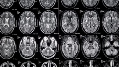 MicroRNAs can serve as markers for demyelination of gray matter lesions in MS