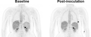 Positron emission tomography and magnetic resonance imaging in experimental human malaria to identify organ-specific changes in morphology and glucose metabolism: A prospective cohort study