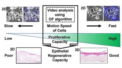 The cell / colony movement index of oral keratinocytes predicts the epithelial regenerative capacity