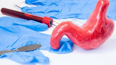 Bariatric surgery reduces ICP in women with obesity and intracranial hypertension
