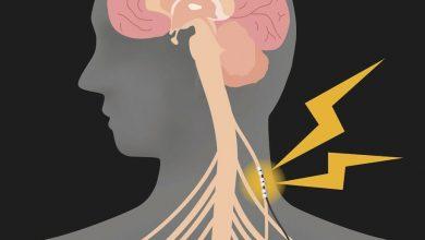 Vagus Nerve Stimulation Improves Arm Function After Stroke Str