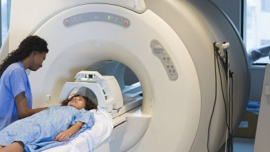Childhood TBI causes widespread and persistent white matter disorders