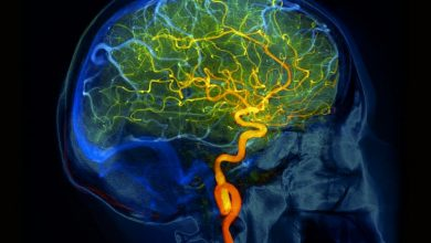 Hundreds of US adults with reversible cerebral vasoconstriction syndrome are hospitalized each year