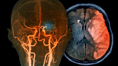Net anticoagulant benefit after stroke in patients aged 66 to 74 years