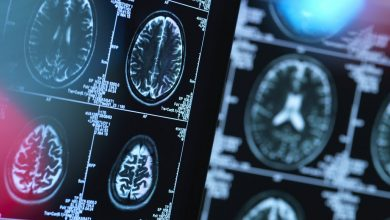 Contrasting patterns of gray matter damage across subtypes of MS