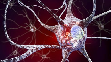 Parkinson's-induced metabolic patterns in the brain as a phenoconversion biomarker