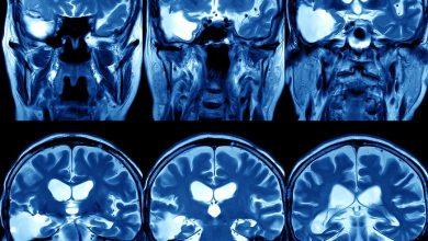 Understand the pathogenesis of neurological impairment in patients with COVID-19