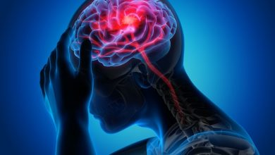 Silent myocardial infarction related to ischemic stroke