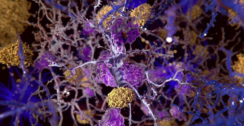 Understand the relationship between Alzheimer's disease and HIV