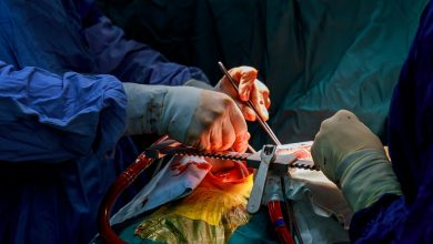 LAA occlusion during surgery reduces the risk of stroke in patients with atrial fibrillation