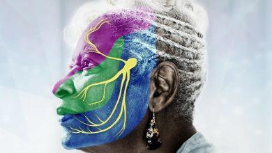 Trigeminal Neuralgia: A rare facial pain disorder that has 3 different subtypes