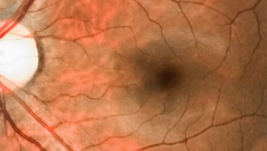 Study investigates imaging tests for occlusion of the central retinal artery