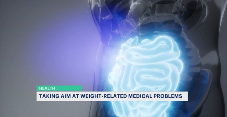 New weight loss treatment helps doctors treat people in the border triangle