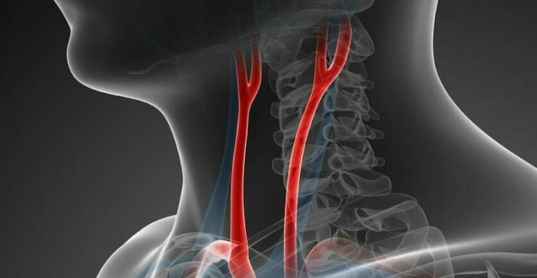Carotid Web increases the risk of a recurring stroke