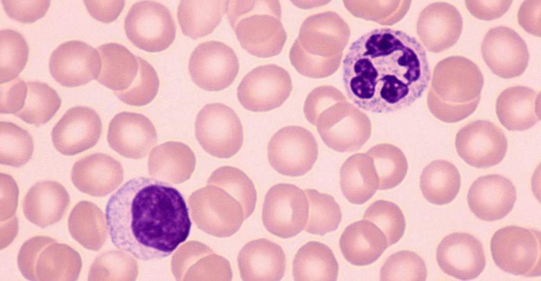 Neutrophil-lymphocyte ratio: a potential acute stroke diagnosis, prognostic marker