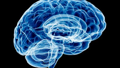 Brain aging and dysregulated protein phosphorylation in Alzheimer's disease