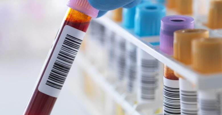 Risk of false low results calls for lead test recall