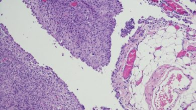 Checkpoint inhibitor-linked mononeuritis multiplex in patients with mesothelioma