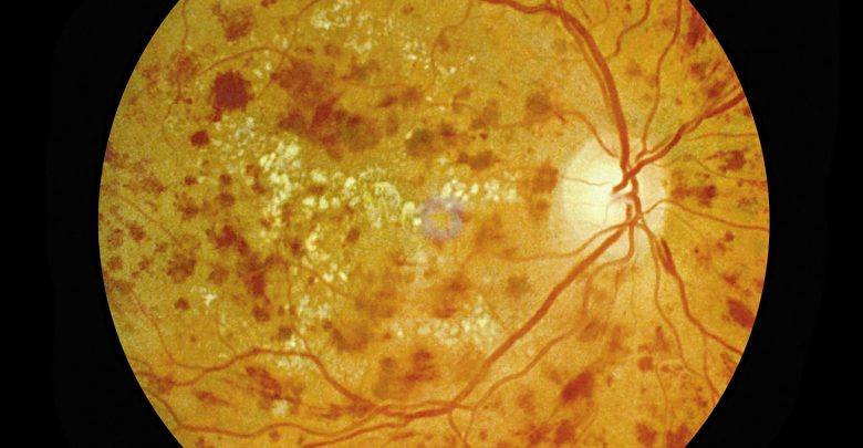 Withdrawal from treatments for diabetic retinopathy can increase neovascularization