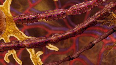 Electroretinogram predicts the severity of diabetic polyneuropathy