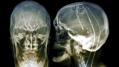 Safety, Feasibility of Postoperative Home Health Deep Brain Stimulation in PD