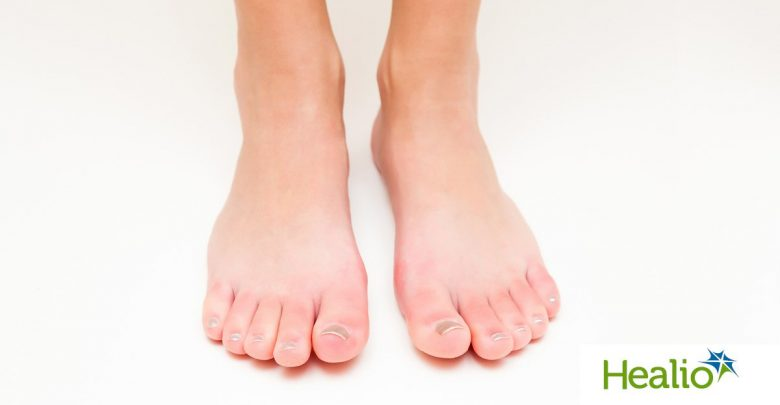 """Diagnosing """"COVID toes"""" and other challenges in derm rheumatic overlap"""