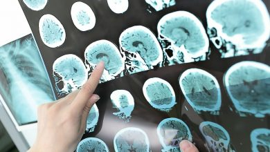 Fluid therapy after traumatic brain injury