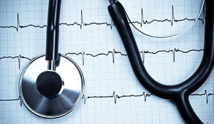New Guidelines Issued for Management of Atrial Fibrillation