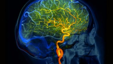 Primary Central Nervous System Vasculitis: From Diagnosis to Management