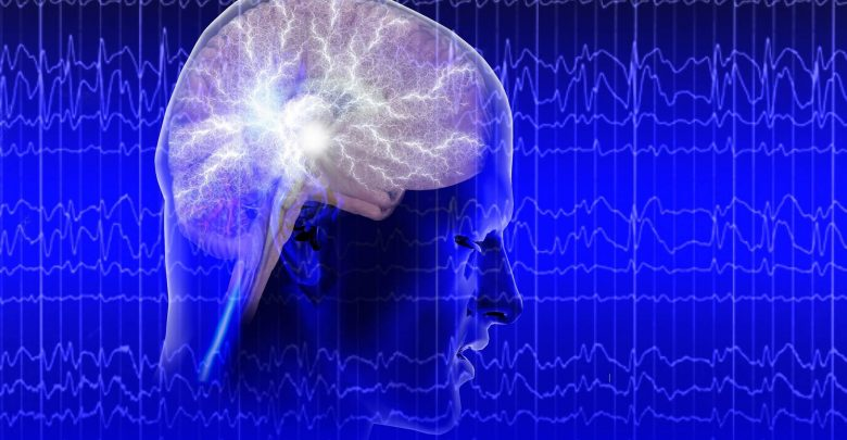 Eslicarbazepine acetate reduced seizures in adults with refractory focal epilepsy