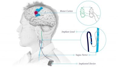 Vagus nerve stimulation system approved for rehabilitation therapy after stroke