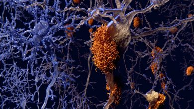 Heterogeneity in Alzheimer's disease progression affects clinical trial results
