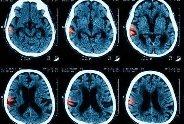 Portable low-field MRI detects intracerebral bleeding