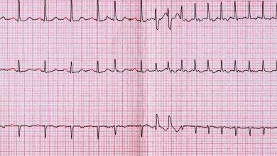 Loop ECG identifies atrial fibrillation in patients at risk of stroke