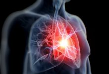 The combined treatment of heart failure and depression can improve mHRQOL